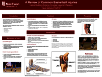A review of common basketball injuries: lateral ankle and anterior cruciate ligament sprains